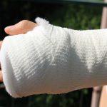 Frattura del polso: tutto quello che devi sapere, dalla frattura alla guarigione